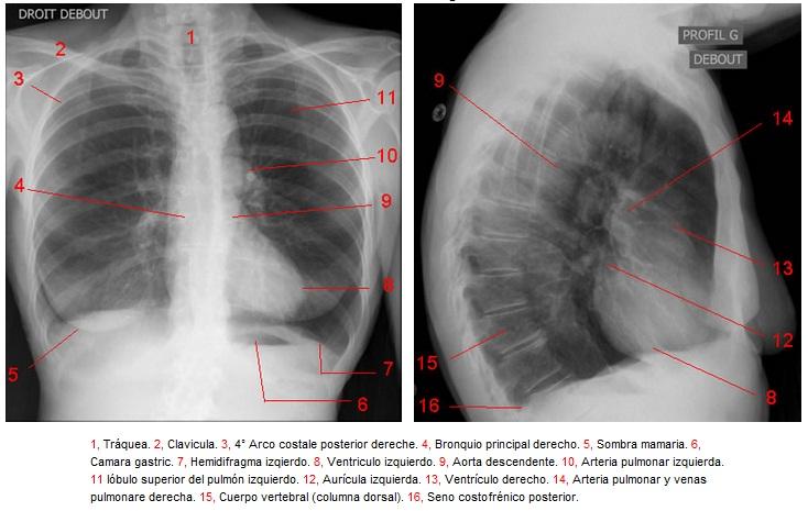 Disección de pulmones de cordero – La segunda pizarra